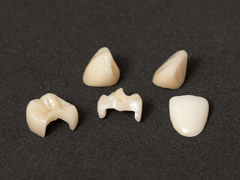 Leucite Glass Ceramic for Dental Restoratives